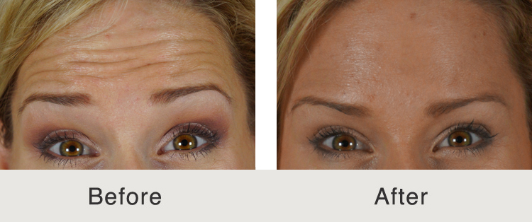 botox cosmetic dermatology in charlotte, nc