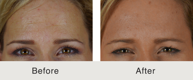 botox wrinkle treatment for forehead in charlotte, nc
