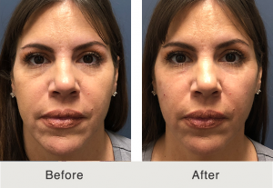under eye dermal fillers in charlotte, nc