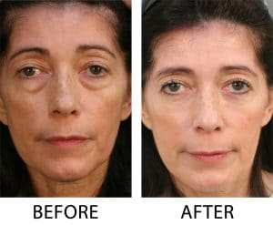 Lower Blepharoplasty results in Charlotte, NC