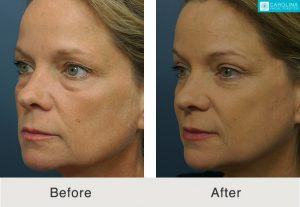 blepharoplasty recovery in charlotte, nc