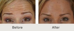 botox fine lines and wrinkles treatment in charlotte, nc