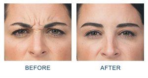 botox wrinkle treatment in charlotte, nc