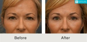 eyelid lift surgery in charlotte, nc