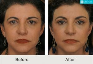 facelift for jawline sculpting in charlotte, nc