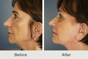 facelift plastic surgery results in charlotte, nc