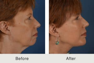 facelift skin tightening surgery in charlotte, nc