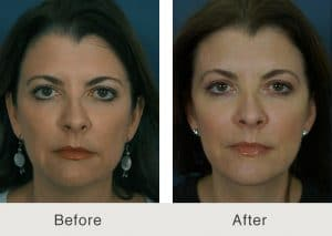 facelift surgeon in charlotte, nc