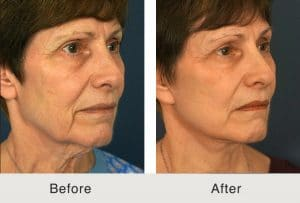 facelift before and after results in charlotte, nc