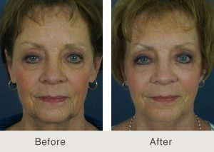 facelift surgery patient in charlotte, nc