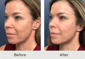 jawline sculpting before and after in charlotte, nc
