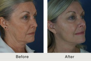 jawline sculpting results in charlotte, nc