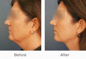 cirugía de lifting de cuello antes y después en charlotte, Carolina del Norte