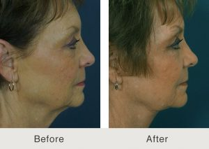 rhytidectomy facelift surgery in charlotte, nc