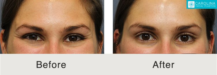 botox before and after at charlotte medical spa