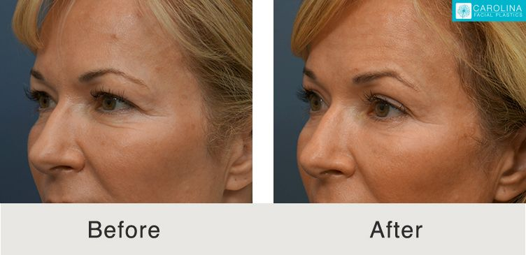 botox before and afters at a charlotte medical spa