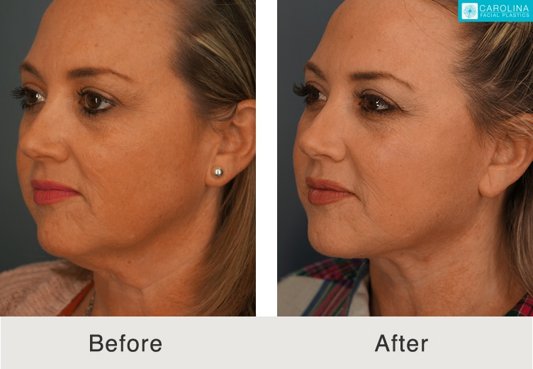 facelift surgery results in charlotte, nc