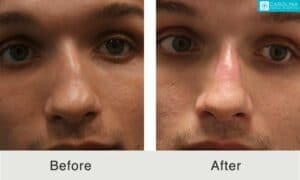 Images comparing nose of a young male after having a nose job procedure making the nose more aligned, Charlotte, NC