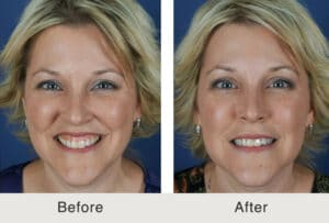 botox results to treat gummy smile in Charlotte, NC