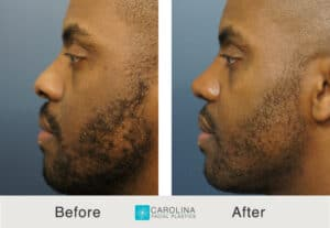 before and after results of a rhinoplasty surgery in Charlotte, NC